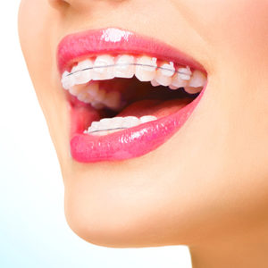Dentist Dubai - Best Ceramic Braces Treatment in Dubai | Dental Clinic Deira Dubai -Best Orthodontist in Dubai- Dr. Nazeer