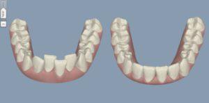 Clear aligners - Orthodontix Dental Clinic Deira Dubai - Cheapest and Best Invisalign treatment in Dubai U.A.E | Invisalign soft ware Clin-check in Dubai