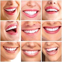 Holly wood Smile - Dr. Nazeer - Orthodontic treatment in Chennai