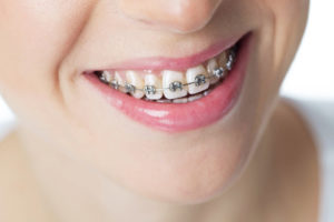 Cheapest and best braces Dubai - Metal Braces Treatment in Dubai - Dentist Deira -Best orthodontic braces Treatment in Dubai