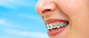 Questions and answers - orthodontic treatment in Chennai
