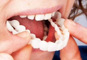 Snap On Smile at Orthodontix Dental Clinic - Cheapest and Best Snap on smile  in Dubai