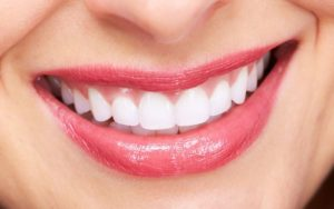 Cheap and Best Veneers in Dubai | Veneers - Hollywood Smile in Dubai - Deira City Centre - Best Dental Clinic in Deira Dubai - Best Dentist in Dubai