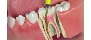 Cheapest and Best Root Canal Treatment in Dubai - Best dentist in Deira Dubai - Orthodontix Dental Clinic