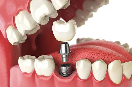Cheapest and Best High Quality Dental Implant in Dubai
